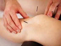 acupuncture treatment pain relief